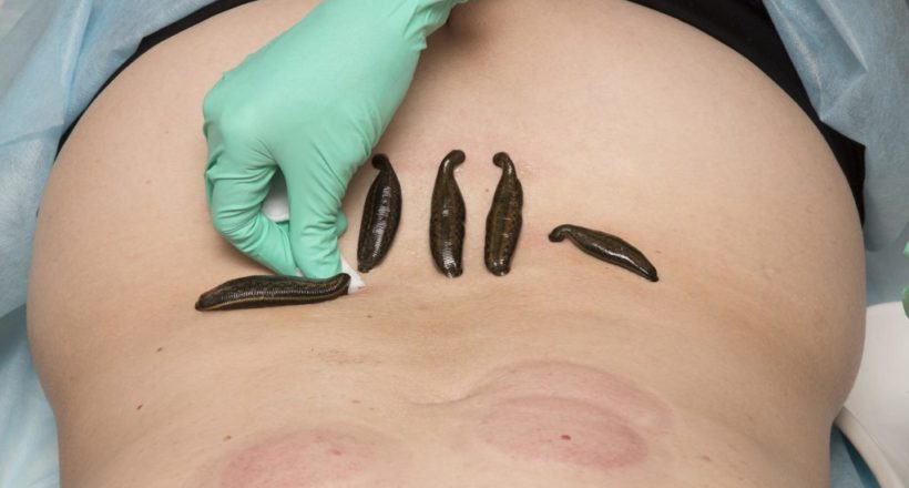 Treatment Of People Of Medical Leeches.